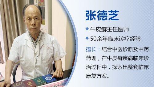 著名中医专家张德芝详解:银屑病的并发症