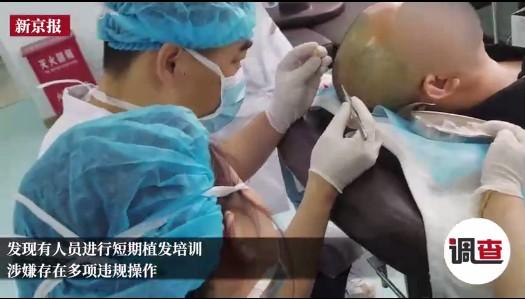 嘉兴小贴士:植发后脱落怎么办?后期需要特别的养护吗?