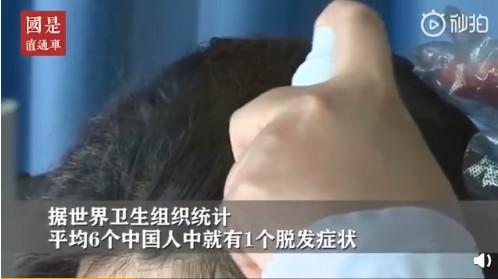 福州新生植发:90后面临秃头危机,植发或成朝阳产业