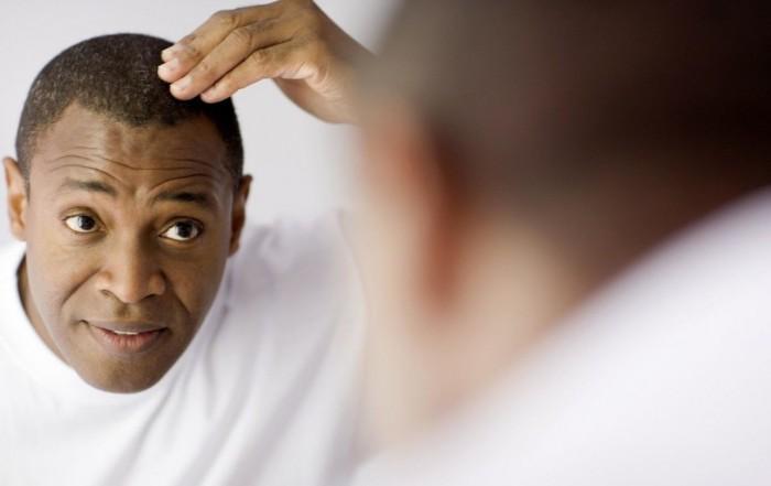 福州新生植发帮您挽回曾经的秀发,一次植发,效果持久