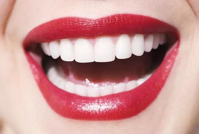 牙贴面要去哪里学?美蔻美牙培训要多少钱?