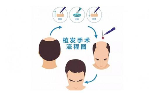 冬季植发已成热潮,很多发友选择来北京新生植发