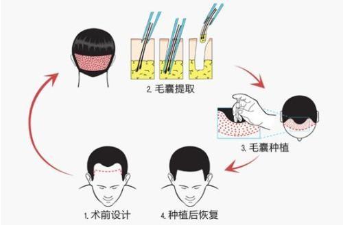 植发后效果能维持多久?听合肥新生植发专家解答