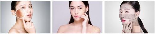 针对性改善肌肤,更多人到樊文花