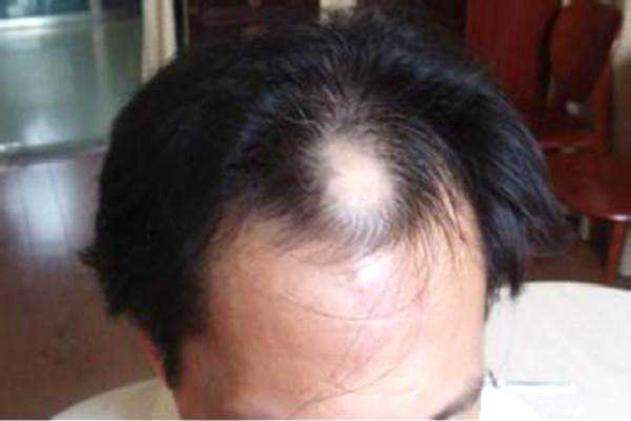 快快使用达霏欣 各种脱发、发际线问题统统再见