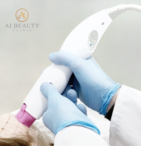 热玛吉英国伦敦 | Ai Beauty Clinic引进最新版第五代热玛吉Thermage
