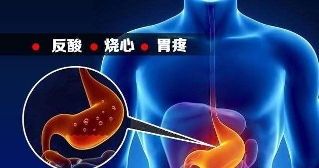 可靠种草日本那些有名效果好的胃药,针对胃酸分泌过多、慢性胃炎、逆流性食道炎该怎样