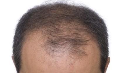 还在为发际线过高而忧虑?达霏欣——治疗脱发很专业