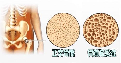 30歲后鈣質流失不可逆?朗迪鈣助你有效減緩鈣流失