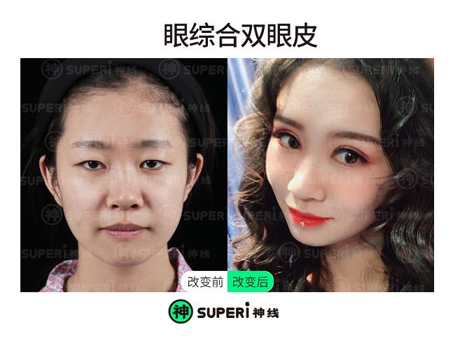 揭秘|烟台神线眼整形:最适合亚洲女孩的眼整形方案是...