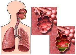 中医贾宁解答肺气肿用什么药治疗比较好