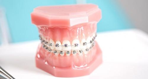 """七夕节,给亲爱的牙齿一次表""""白""""机会"""