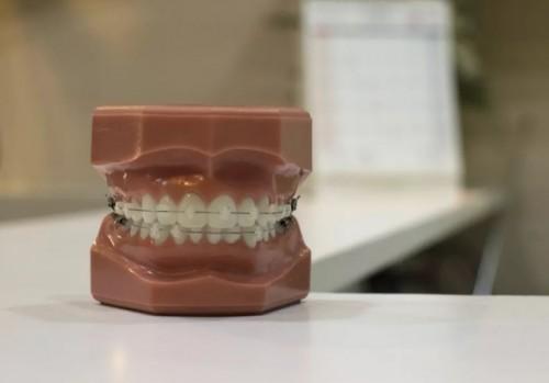 杭州牙齿矫正哪家好?说说牙齿矫正必须了解到的问题
