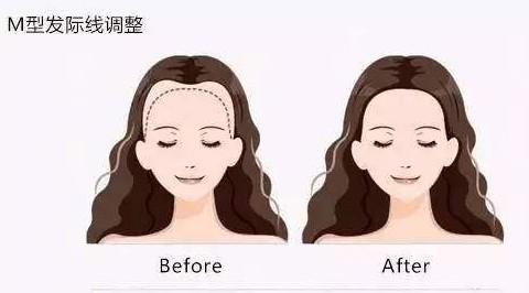 天津熙朵植发:发际线植发有危险吗?发际线植发多少钱?