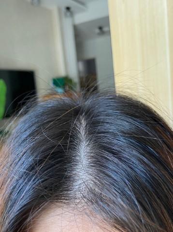 哪款洗发水去屑效果好?头皮干燥头屑多怎么办?