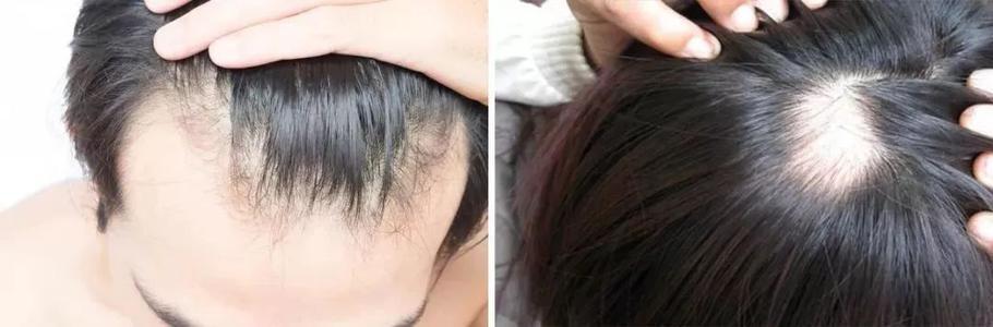 干枯受损发质福音,你值得拥有的滋养洗护发品牌--首年华