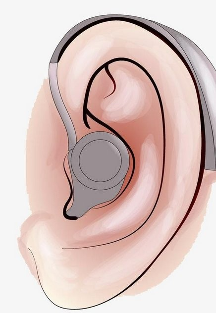 助听器的危害1.png