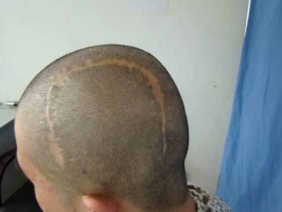 广州熙朵植发:疤痕脱发用什么药治疗效果好_疤痕植发效果好吗?