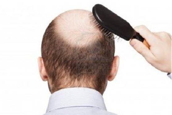 植发市场扩张背后:防脱产品收效甚微,植发手术更受青睐