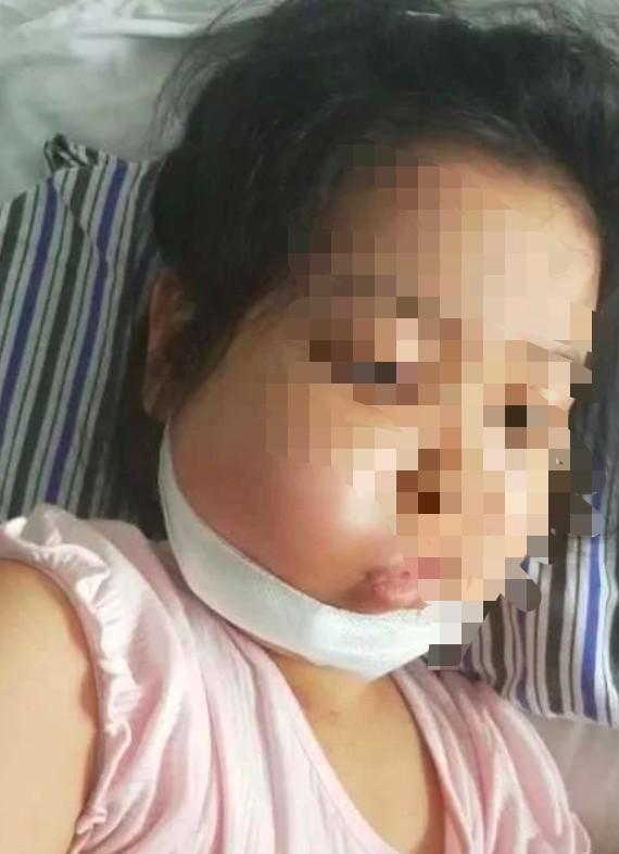 女童白血病复发,水滴筹聚爱心款助力治疗
