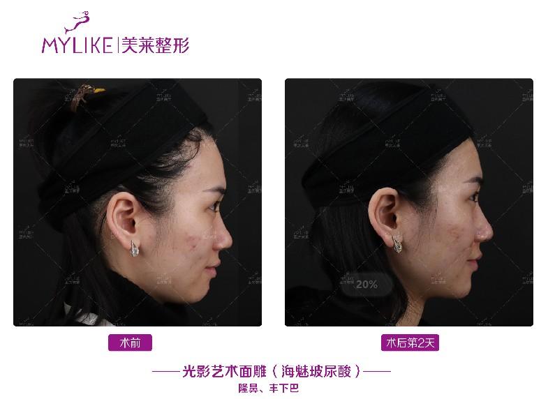 重庆美莱整形美容病院联袂上海昊海生科发布玻尿酸海魅