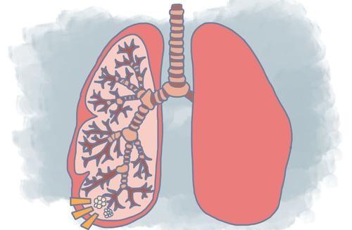 微易经纪说保险 :查出肺结节,重疾险应该怎么买?