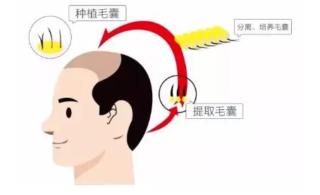 """植发市场""""蹭热度""""现象频出,大麦解读""""正版""""微针植发技术"""