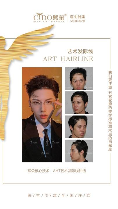 发际线后移影响外貌,追求完美艺术发际线首选熙朵植发