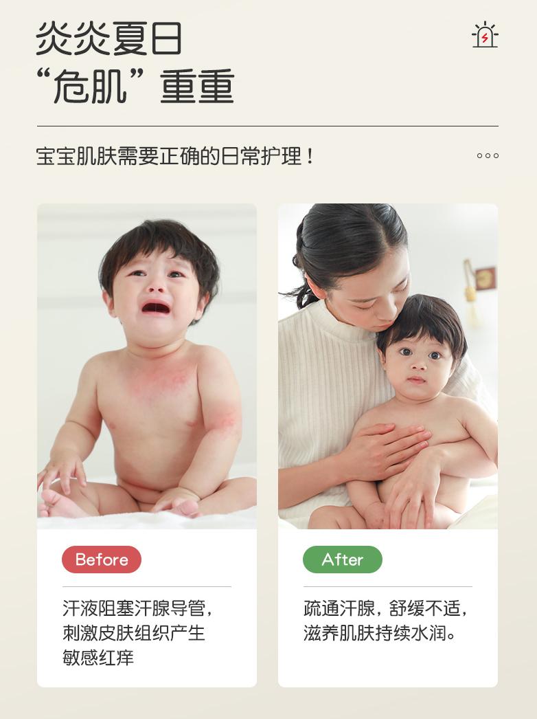 松达婴儿山茶油爽身露一抹清凉预防痱子宝宝夏季护肤优选