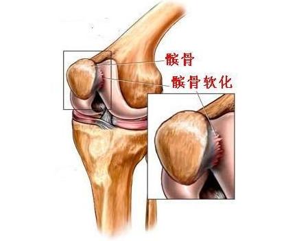 髌骨软化其实是软骨损伤,吃西班牙古力提蛋壳膜氨糖效果好