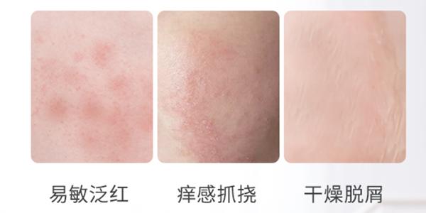 """夏季新生儿如何预防湿疹?选对保湿霜、及时保""""湿""""是关键!"""