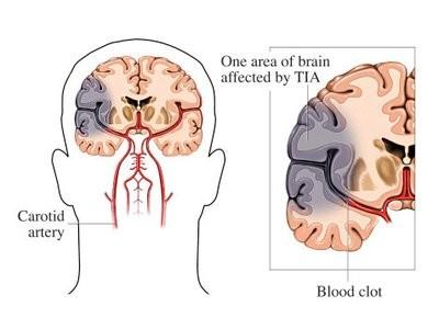 小脑图片1.jpg