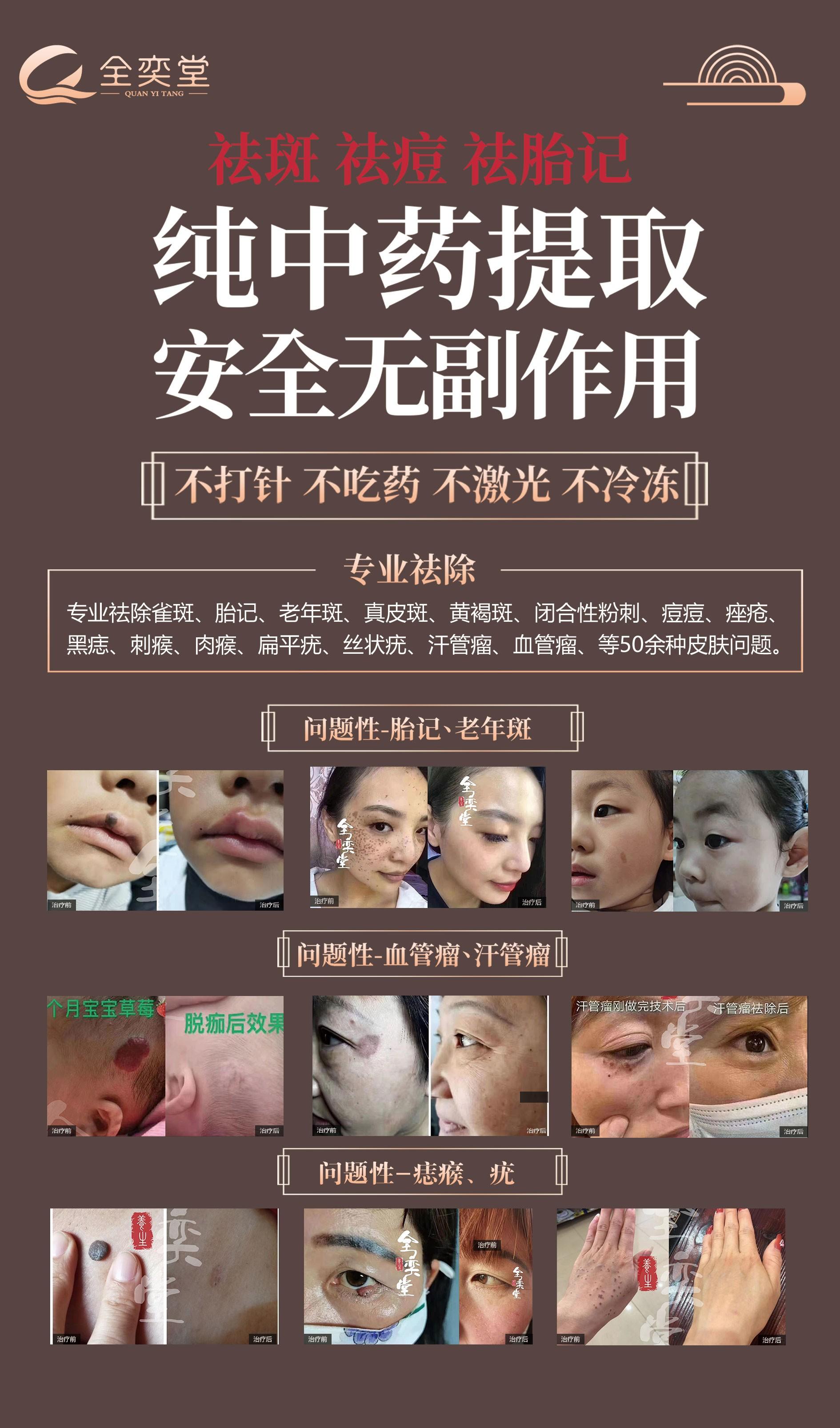 全奕堂——中医与科技结合的皮肤修复品牌