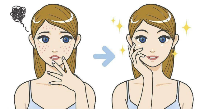 战痘源动力:伊肤泉祛痘携手问题肌研究所,打造皮肤健康年轻态
