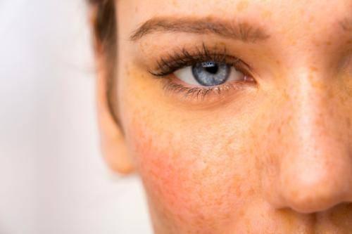 斑点肌攻略:伊肤泉美白祛斑助力白皙嫩肤状态再现