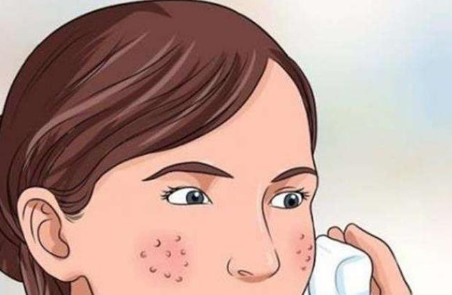 打开战痘新姿势,伊肤泉祛痘与问题肌研究所助你逆袭光洁肌肤